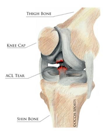 knee tear diagram