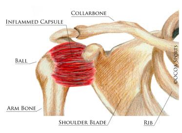 shoulder16.jpg