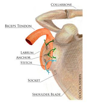 shoulder35.jpg